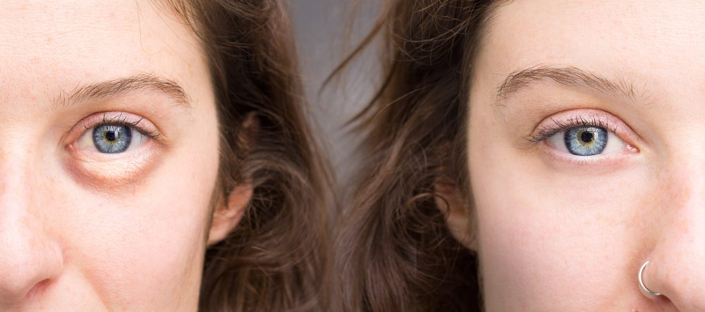 a-quick-guide-to-getting-rid-of-puffy-eyes
