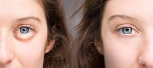 A Quick Guide To Getting Rid Of Puffy Eyes