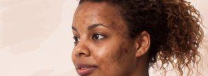 Six Natural Remedies For Dark Spots