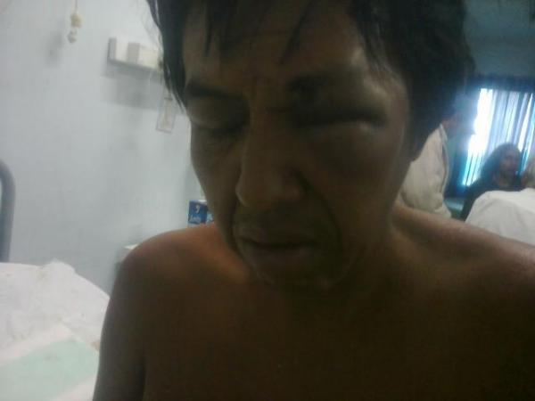 Carlos Sosa, otro miembro de la comunidad qom atacado.