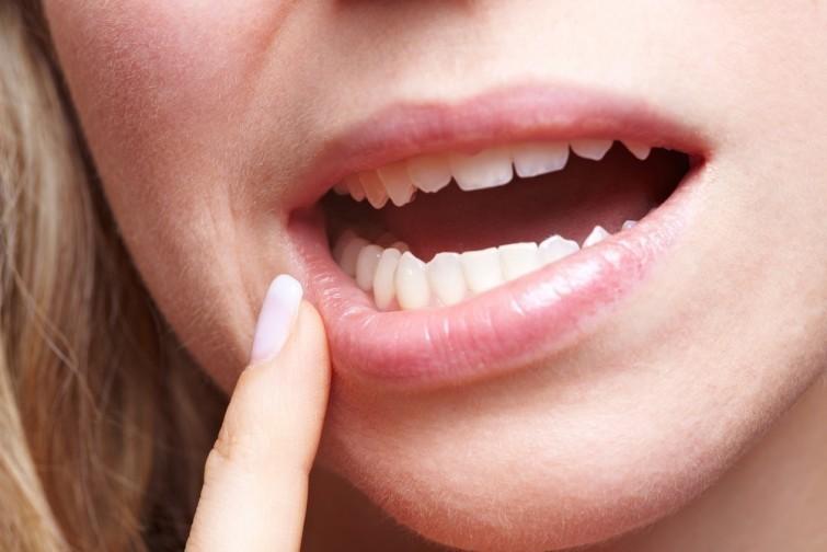 sensibilite-dents