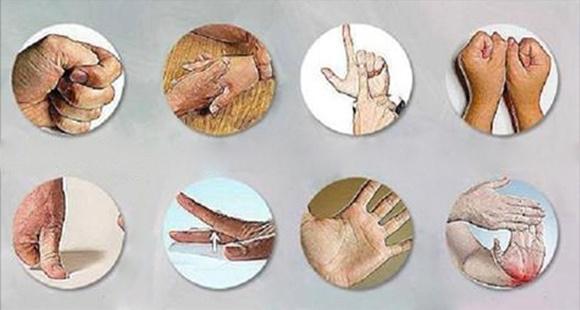 Boswellia pas cher - Arthrite - Causes, Symptômes, Traitement, Diagnostic ...