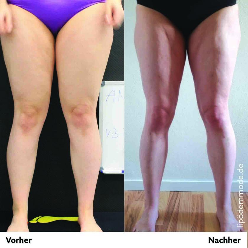 Lipoedem Liposuktion | Die Beine vor der OP, die Beine nach der OP | Credits: Caroline Sprott | Lipoedemmode