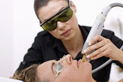 2-laser-treatment