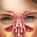 How To Cure Sinus Infection At Home – Sinus Infection Quick Remedy