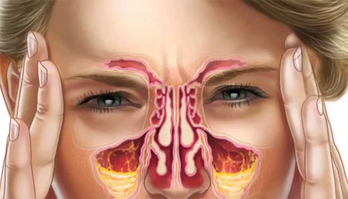 Cure sinus in infection at Home