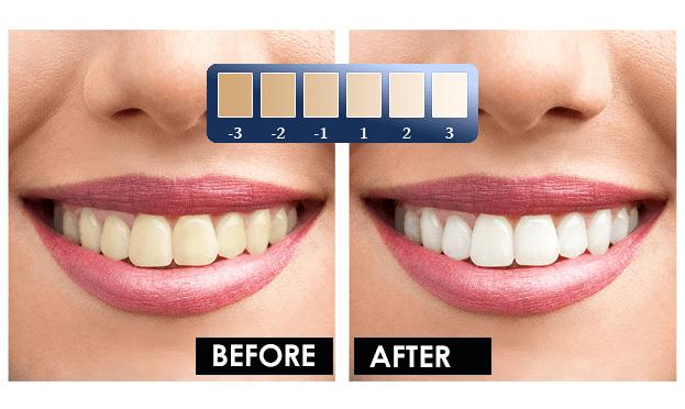 Bella Labs Teeth Whitening price