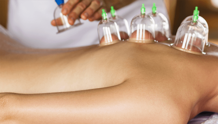 cupping therapy benefits
