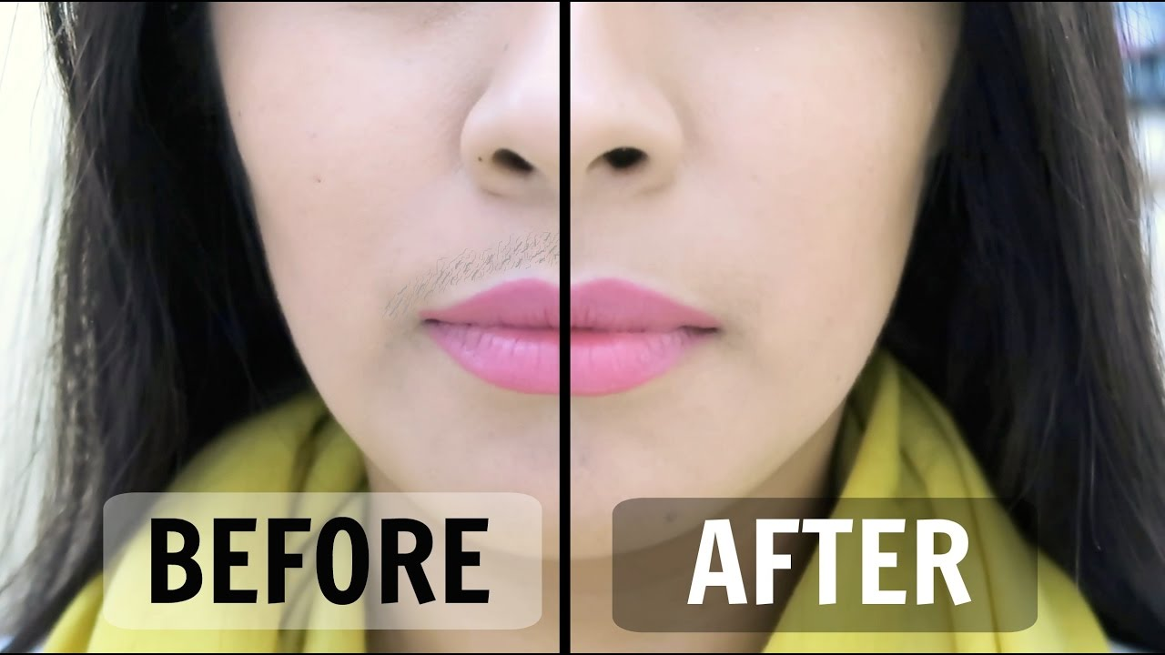 Female Mustache Remedies