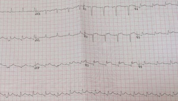Clinical Case 02 ECG