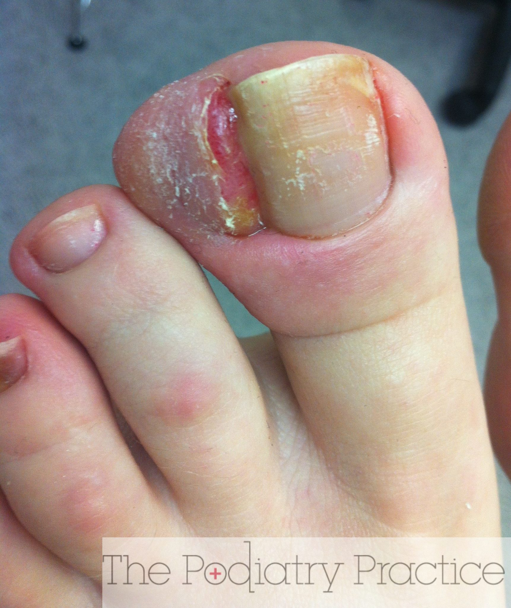 Badly Infected Ingrown Toenail Wow, this is a severe ...