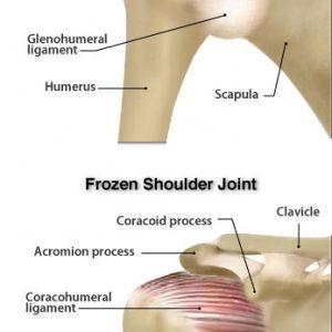 diagram frozen shoulder   POGO Physio Gold Coast