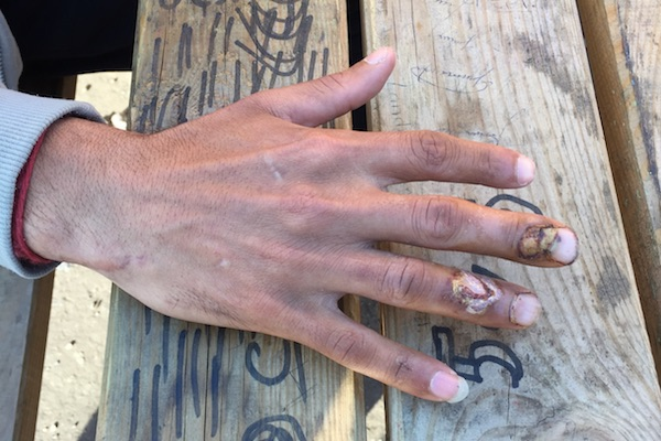 Rubber bullet-riddled hands of a refugee in the Calais Jungle