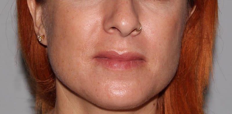 Fresh Face Skin Care Center Cranston Ri