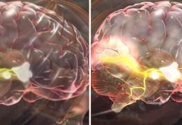 """Nova """"Pílula Inteligente"""" é lançada no Brasil. Seria esse o estimulante cerebral mais potente do planeta?"""