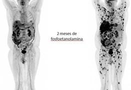 Exame mostra multiplicação de tumores mesmo após uso da fosfoetanolamina