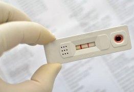 Fiocruz inicia produção de teste de zika, dengue e chikungunya