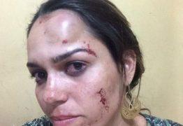HOMOFOBIA ? Briga entre jogadores, torcedor e dirigentes do Atlético de Cajazeira vira caso de polícia