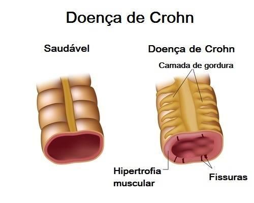 18554642 1142496005855341 1722092565 n - DOENÇA DE CROHN: Conheça a doença sem cura que afeta sistema digestório