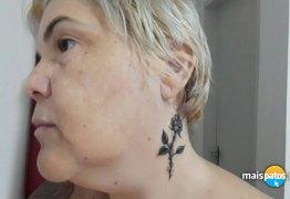Blogueira usa arte para cobrir cicatriz causada por agressão de ex-namorado