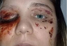 Mulher é presa após simular doença nos olhos para receber doações