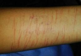 Polícia apura ligação entre o nocivo jogo Baleia Azul e rede de pedofilia
