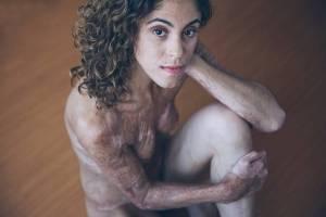 amanda1 300x200 - Jovem fala sobre traumas e cicatrizes após tentar salvar mãe de incêndio