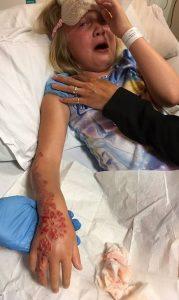 menina britânica 179x300 - Garotinha fica com marcas permanentes após fazer tatuagem de henna
