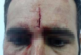 Agente  sofre corte na testa após tentativa de fuga de menor infrator