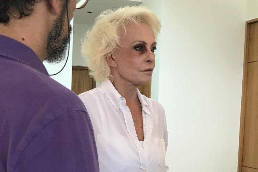 ana maria braga capa - Ana Maria Braga aparece de olho roxo e preocupa internautas