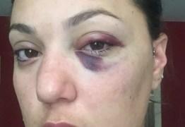Noiva de ex-lutador de MMA relata agressão: 'Apaguei no meio-fio'