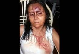 Mulher sofre vários ferimentos ao ser atacada por cães de rua na Paraíba