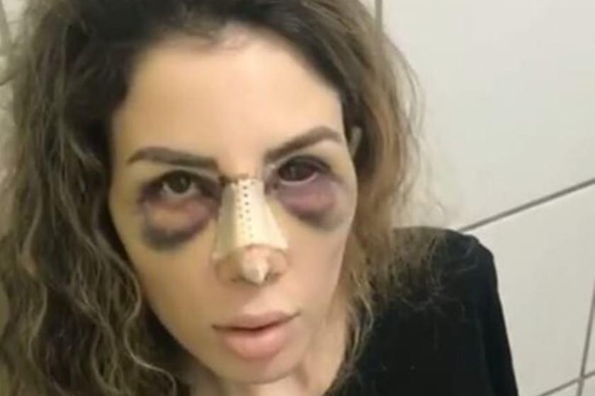 camilla 1 - Caso de Camilla Uckers piora e empresário pede para ela não morrer