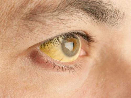 febre amarela 1 - Secretaria de Saúde de João Pessoa diz que caso suspeito de febre amarela tem Hepatite A