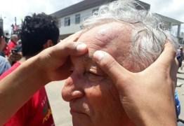 """""""Ricardo Coutinho não orientou a polícia a agir com tanta violência"""", diz deputado"""