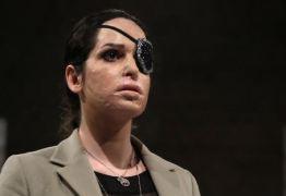 Miss italiana atacada com ácido participa de desfile de moda