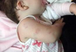 Mãe é acusada de agredir bebê de apenas dois meses na Paraíba