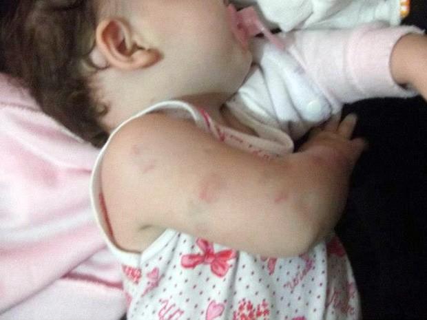 agressao7 - Mãe é acusada de agredir bebê de apenas dois meses na Paraíba