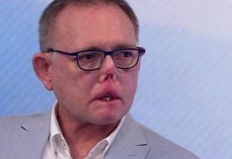 O homem que perdeu pernas, dedos e parte do rosto após arranhão e lambida de seu cão