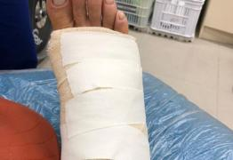 Xuxa sofre acidente e fica impossibilitada; veja foto