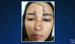 Cantor e radialista é suspeito de agredir ex-mulher
