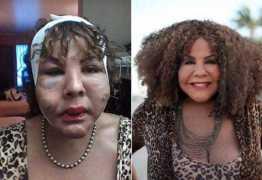 Após injetar cimento, transexual recupera feições com procedimento