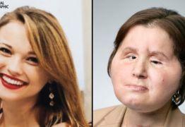 Transplante de rosto: a 'segunda chance' de uma jovem sobrevivente de um suicídio