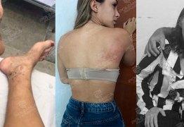NA BOATE, NAS REDES SOCIAIS E DENTRO DE CASA: Apesar dos 12 anos da Lei Maria da Penha agressões e morte continuam fazendo parte da rotina da paraibana