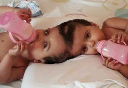 Gêmeas siamesas passam por 3ª cirurgia de separação