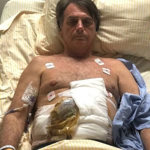 40550264 244986783033716 4793710760451638563 n 300x300 - URGENTE: Bolsonaro tem complicação e preocupa médicos que suspendem alimentação oral - ENTENDA