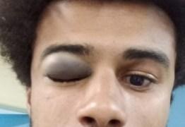 INTOLERÂNCIA: Jovem é agredido com barra de ferro em campanha pró-PT