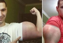 'Popeye russo' afirma que come ração para gatos, seis vezes ao dia, para ganhar músculos