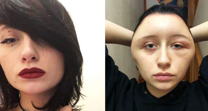 tintura de cabelo 696x371 - ALERGIA EXTREMA: Jovem decide pintar o cabelo em casa e quase morre após ficar deformada