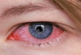 Casos de sífilis ocular no Brasil preocupam especialistas